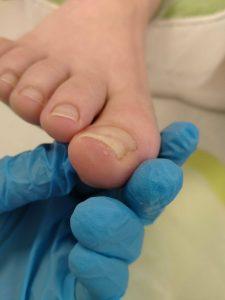 Onycholiza paznokcia